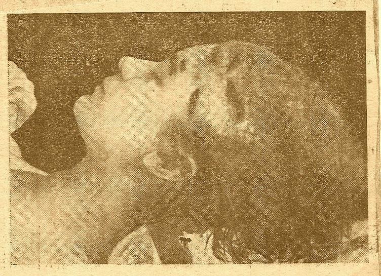 Elżbieta (Lusia) Zarembianka z widocznymi obrażeniami głowy. Zdjęcie wykonano tuż po śmierci.